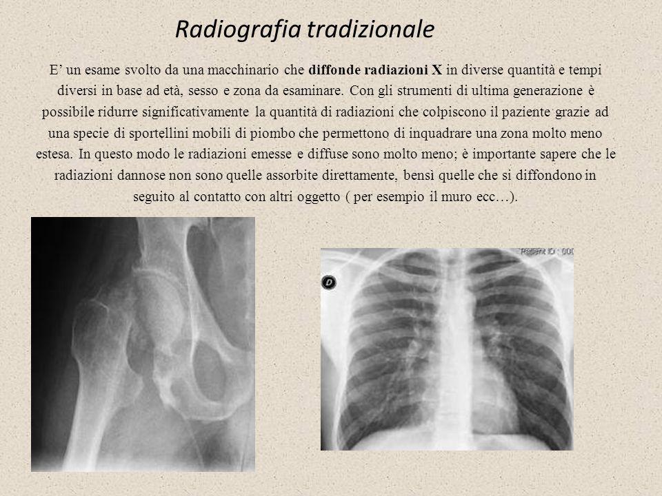 Radiografia tradizionale