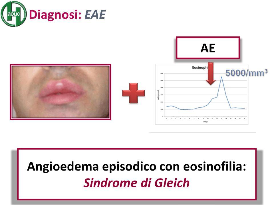 Angioedema episodico con eosinofilia: Sindrome di Gleich