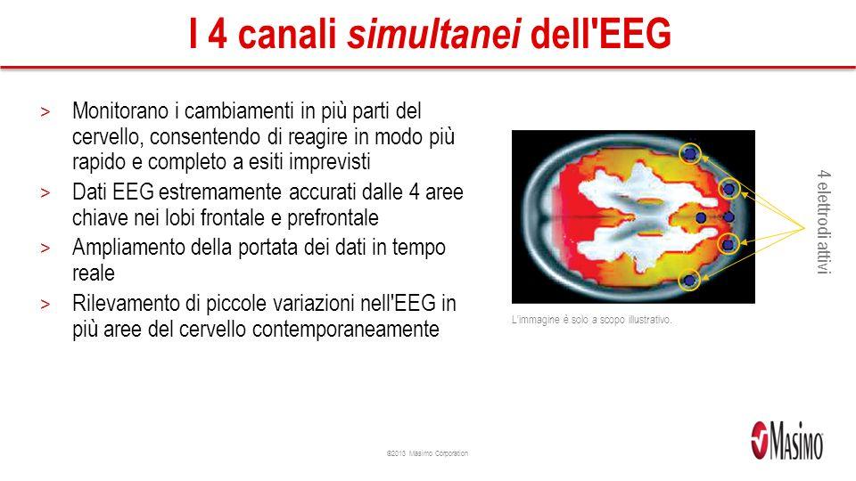 I 4 canali simultanei dell EEG