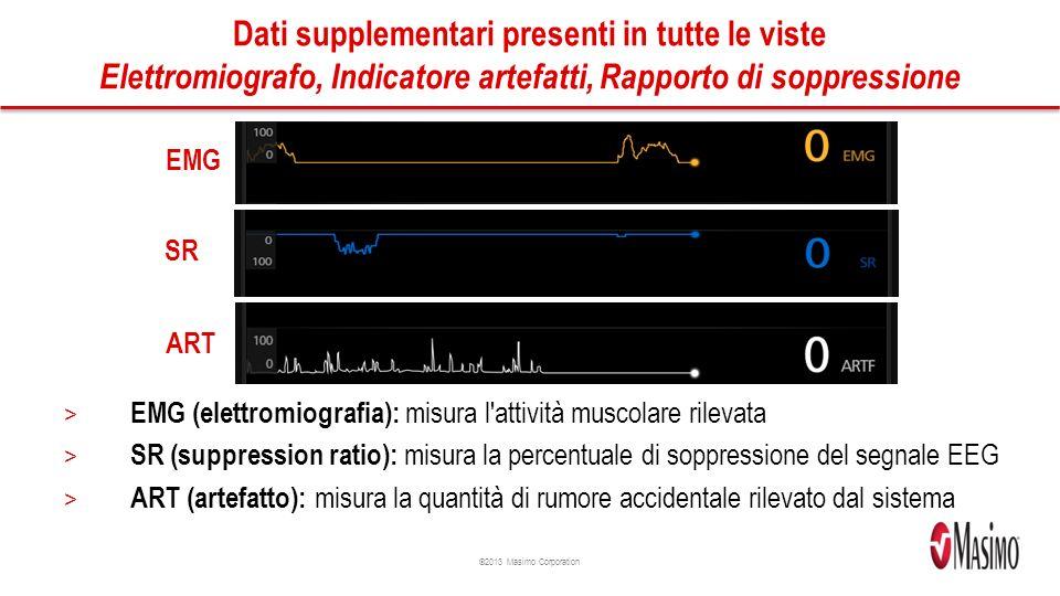 Dati supplementari presenti in tutte le viste Elettromiografo, Indicatore artefatti, Rapporto di soppressione