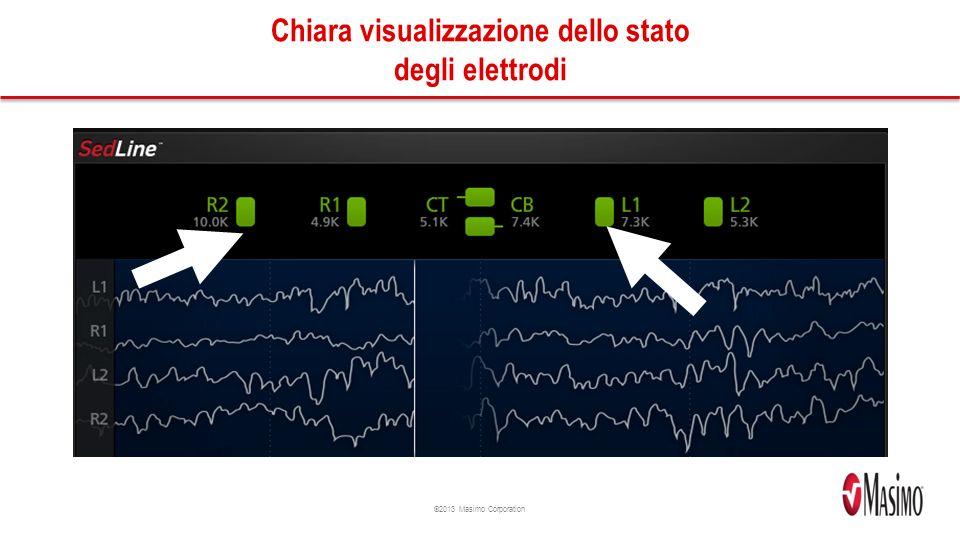 Chiara visualizzazione dello stato degli elettrodi