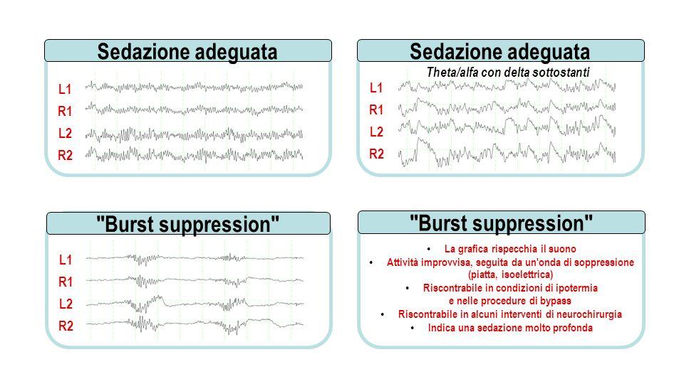 Sedazione adeguata Sedazione adeguata Burst suppression