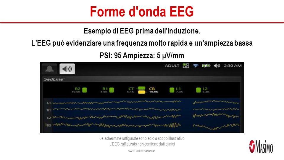 Forme d onda EEG Esempio di EEG prima dell induzione.