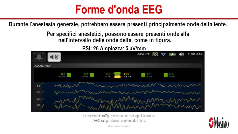 Forme d onda EEG Durante l anestesia generale, potrebbero essere presenti principalmente onde delta lente.