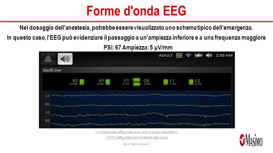 Forme d onda EEG Nel dosaggio dell anestesia, potrebbe essere visualizzato uno schema tipico dell emergenza.