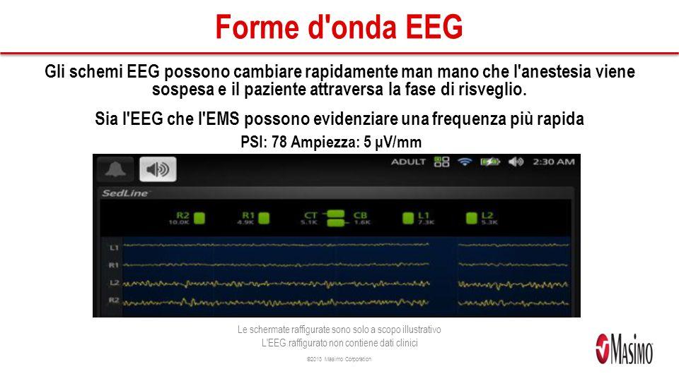 Sia l EEG che l EMS possono evidenziare una frequenza più rapida