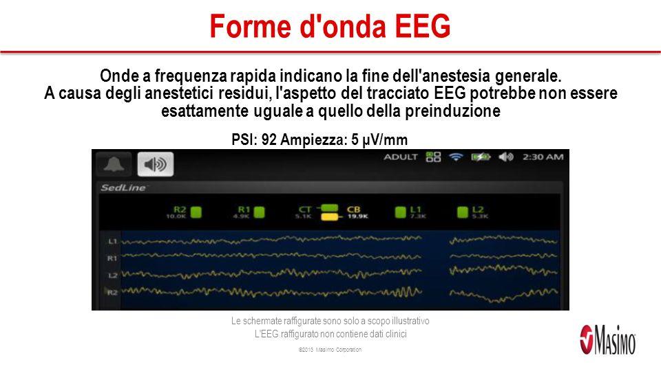 Forme d onda EEG