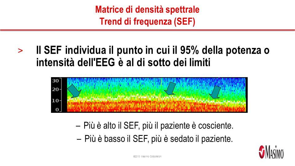 Matrice di densità spettrale Trend di frequenza (SEF)