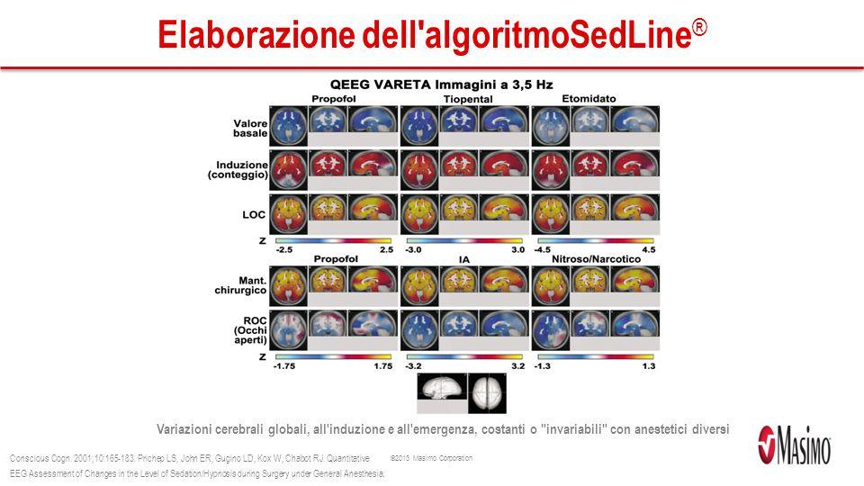 Elaborazione dell algoritmoSedLine®