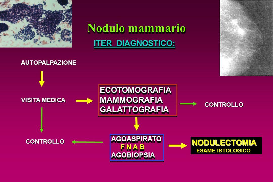 Nodulo mammario ITER DIAGNOSTICO: ECOTOMOGRAFIA MAMMOGRAFIA