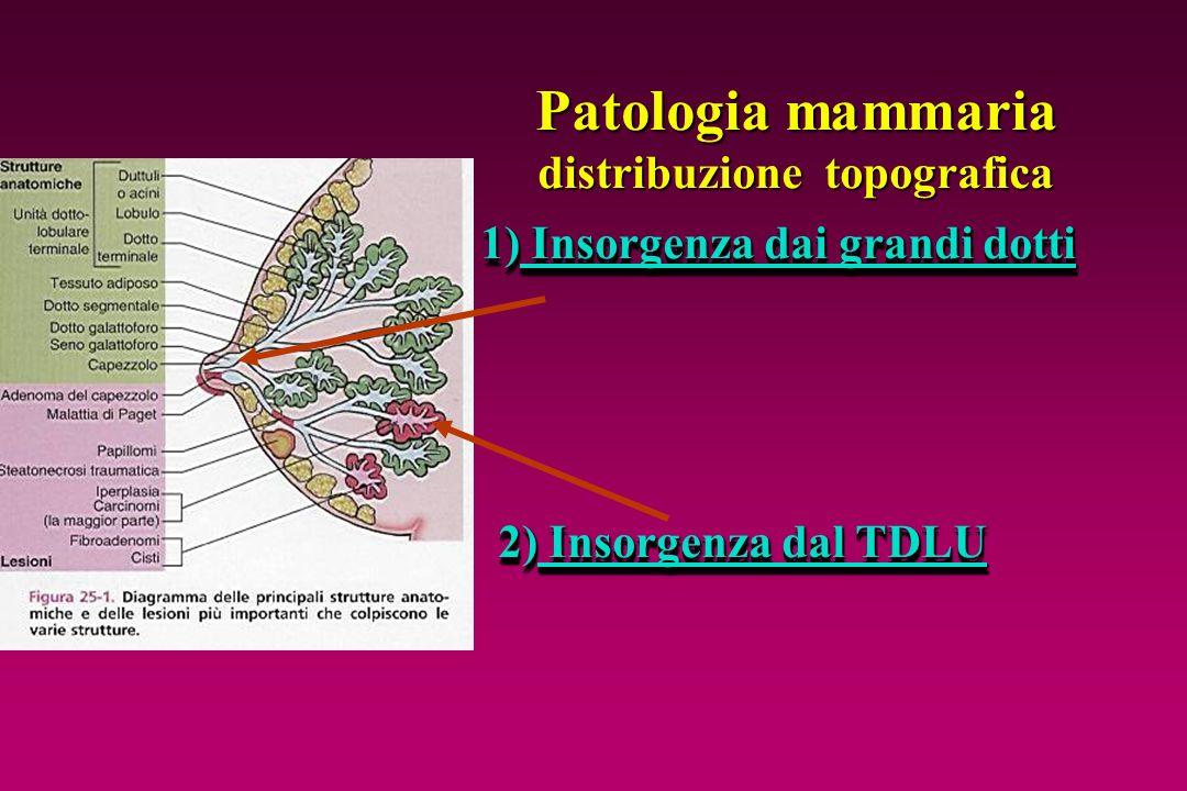 Patologia mammaria distribuzione topografica