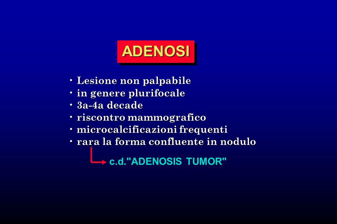 ADENOSI Lesione non palpabile in genere plurifocale 3a-4a decade
