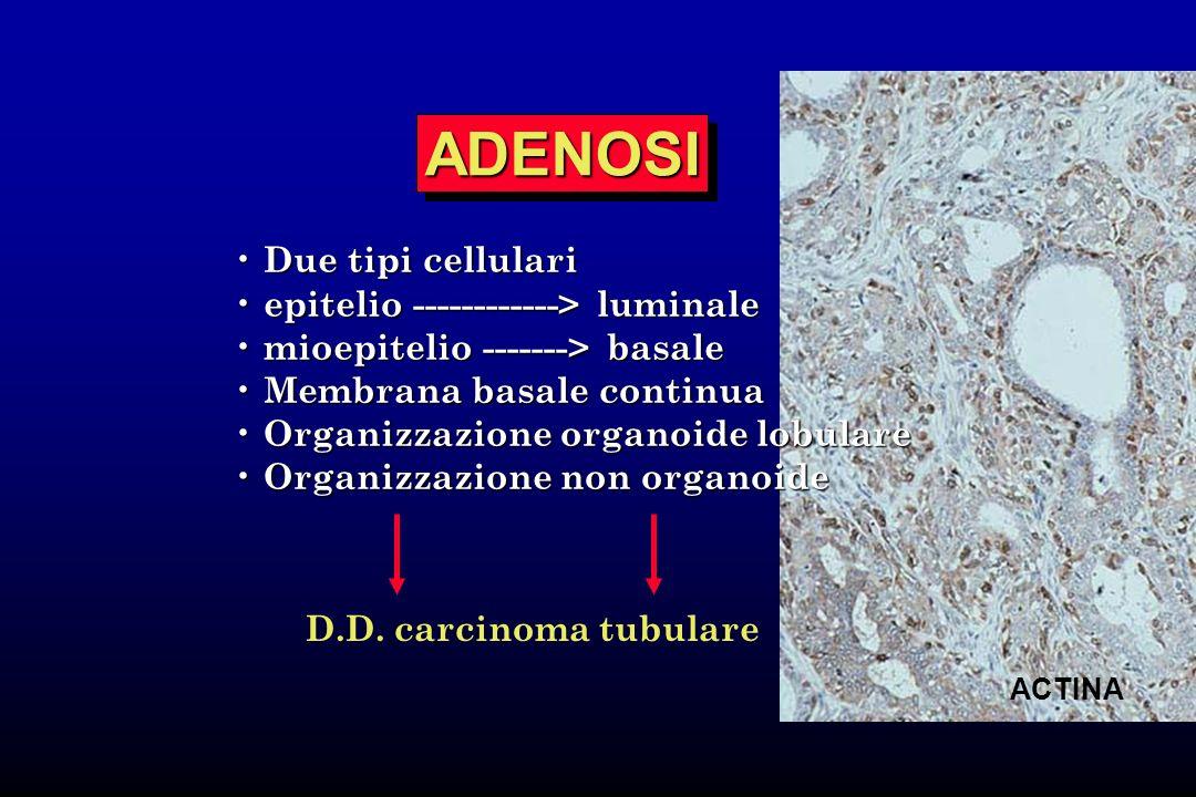 ADENOSI Due tipi cellulari epitelio ------------> luminale