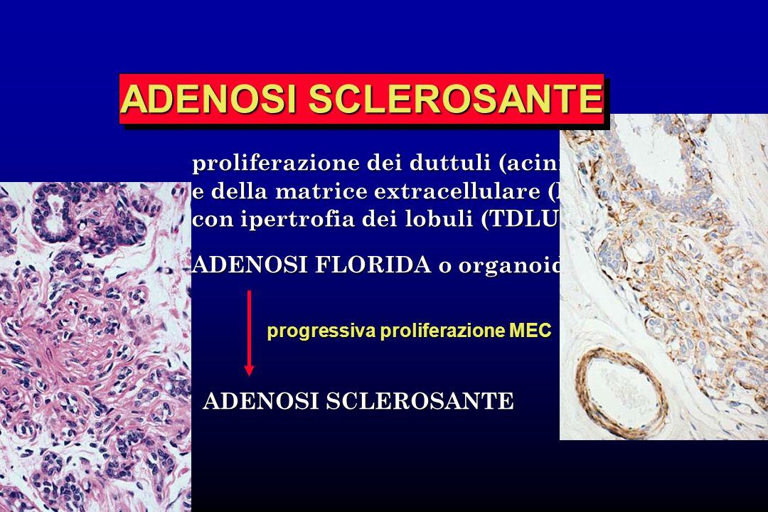 ADENOSI SCLEROSANTE proliferazione dei duttuli (acini)