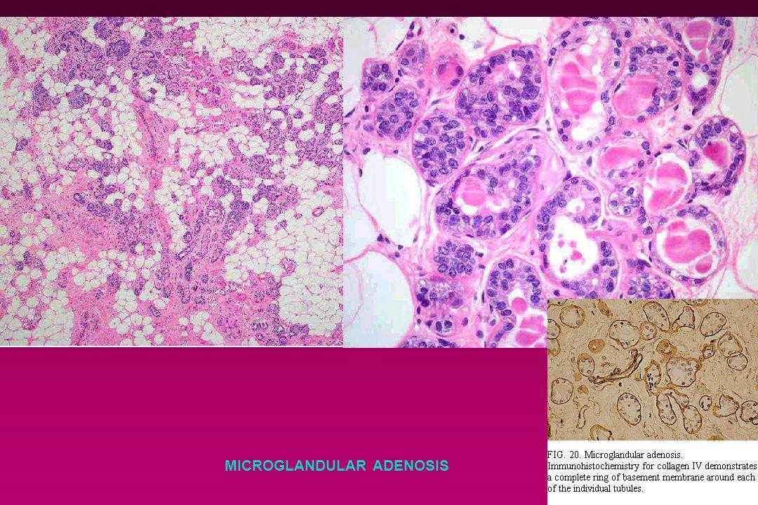 MICROGLANDULAR ADENOSIS