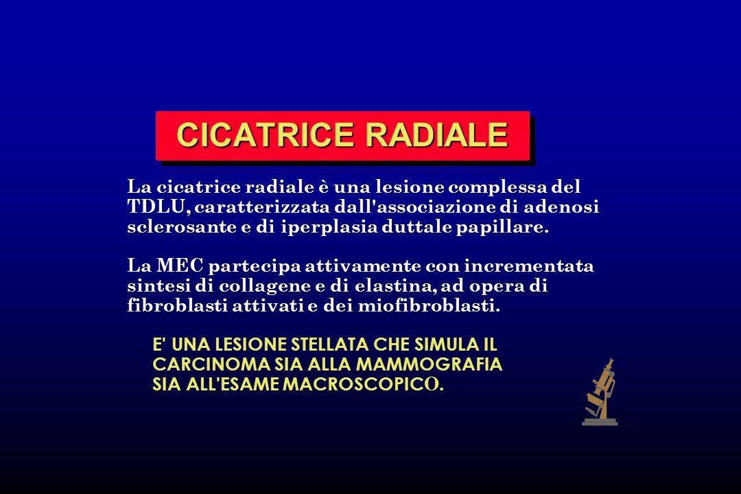 CICATRICE RADIALE La cicatrice radiale è una lesione complessa del