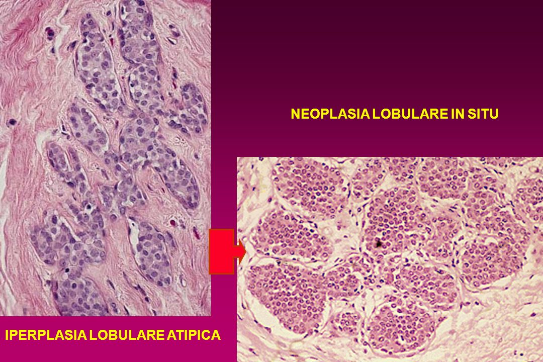 NEOPLASIA LOBULARE IN SITU