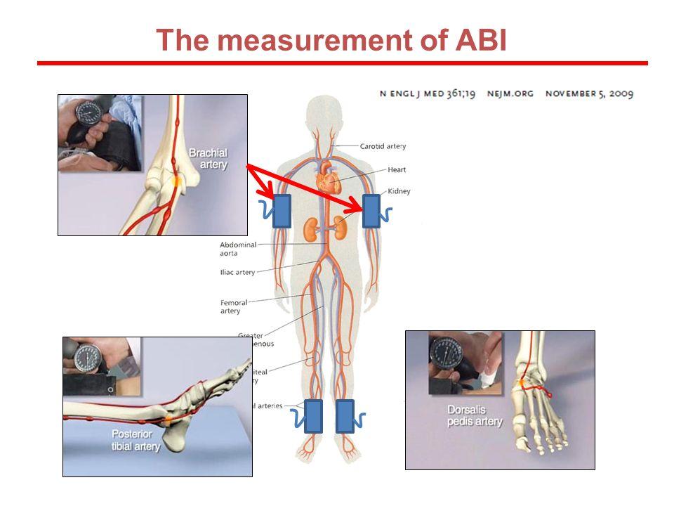 The measurement of ABI
