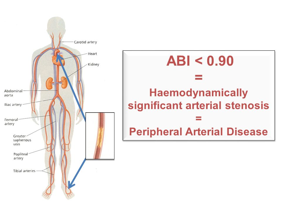 ABI < 0.90 = Haemodynamically significant arterial stenosis