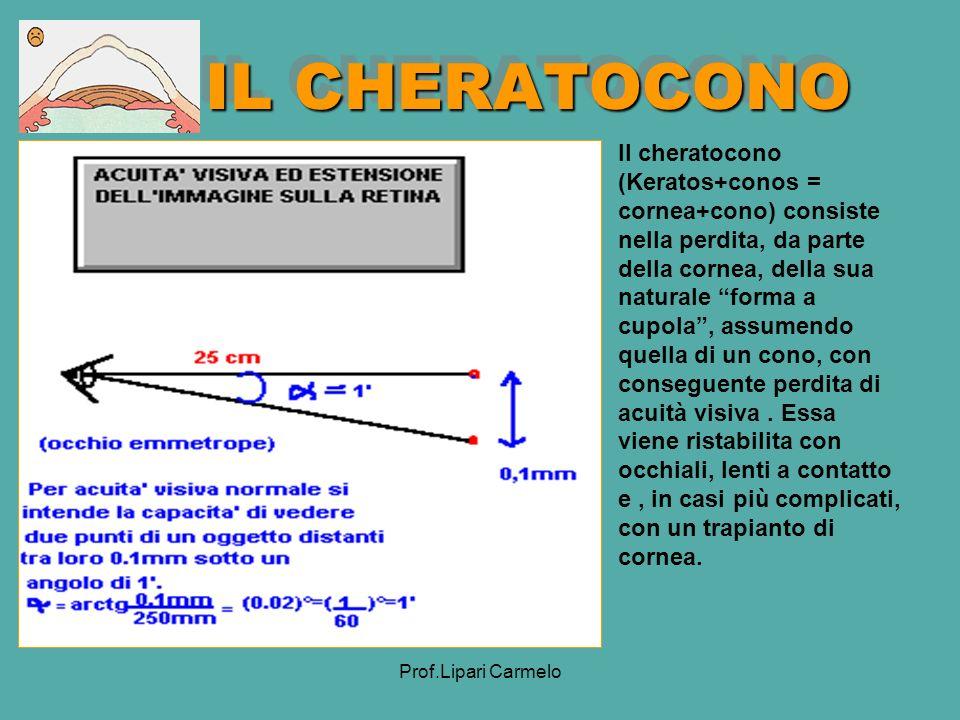 IL CHERATOCONO