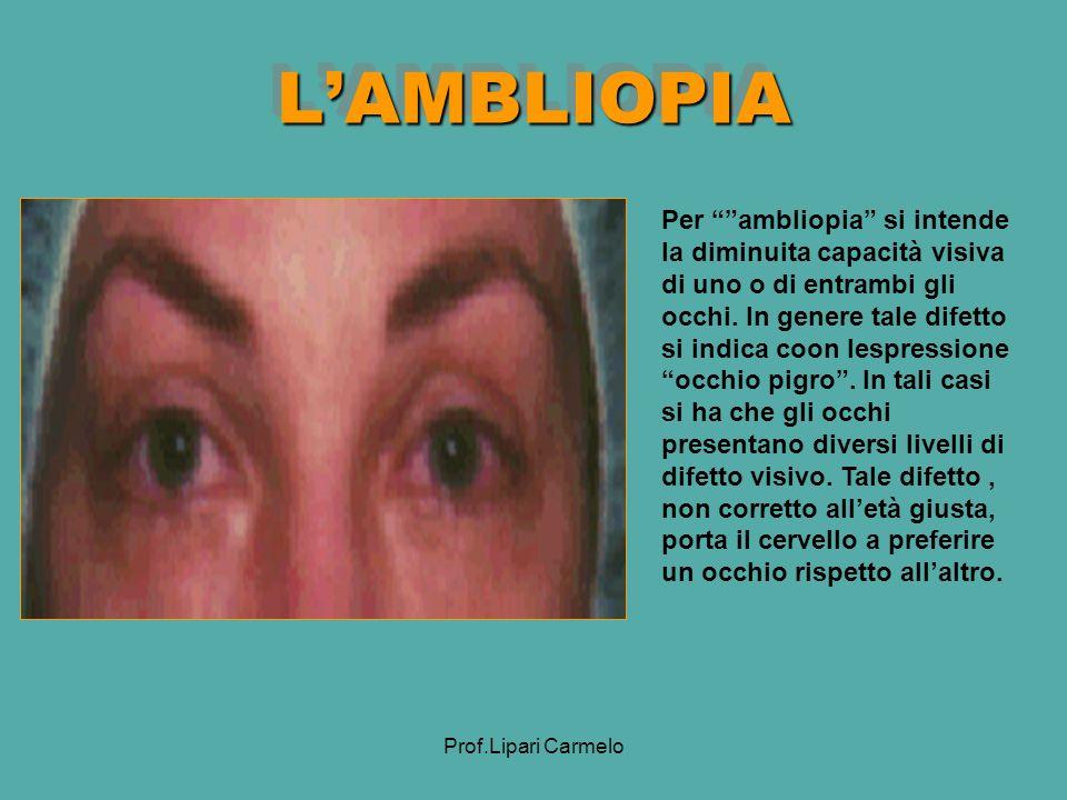 L'AMBLIOPIA