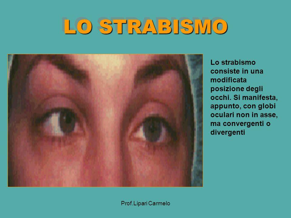 LO STRABISMO