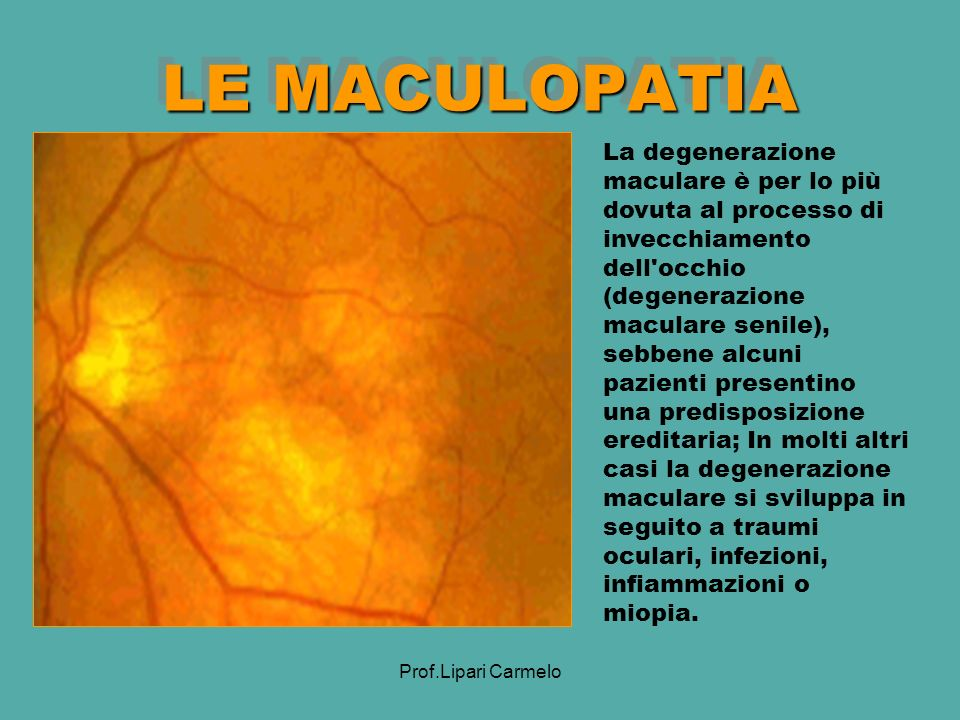 LE MACULOPATIA