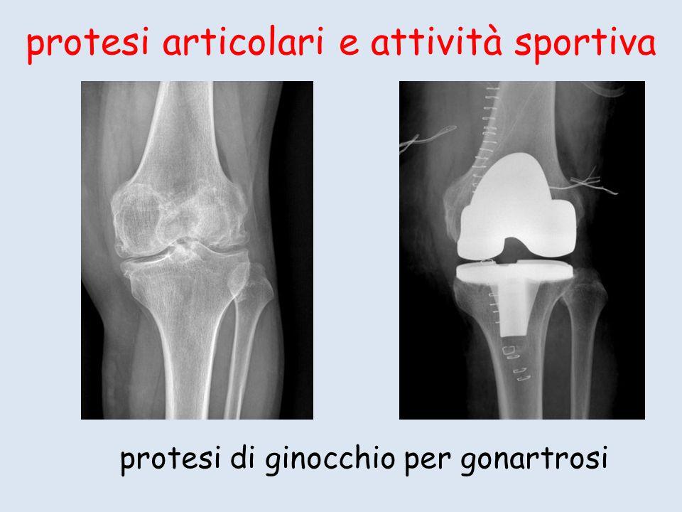 protesi articolari e attività sportiva