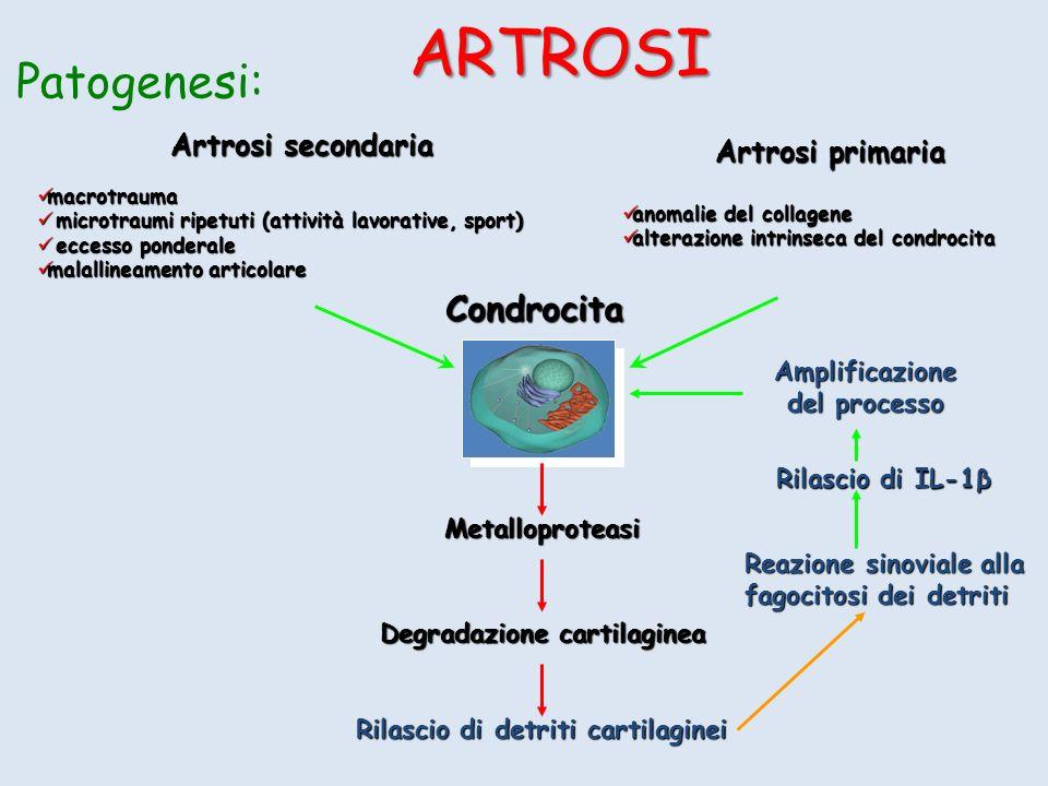 ARTROSI Patogenesi: Condrocita Artrosi secondaria Artrosi primaria
