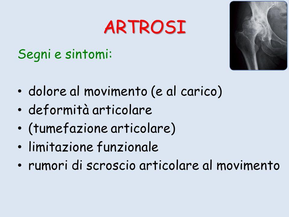 ARTROSI Segni e sintomi: dolore al movimento (e al carico)
