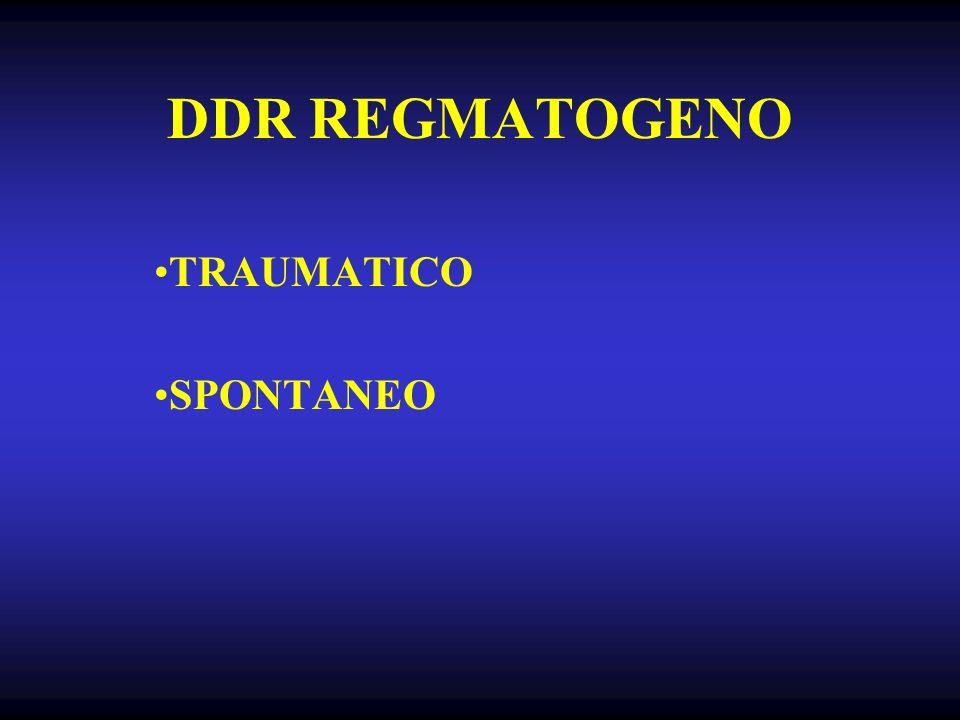 DDR REGMATOGENO TRAUMATICO SPONTANEO