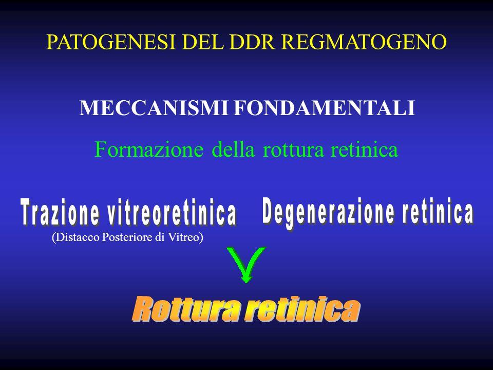 Trazione vitreoretinica Degenerazione retinica