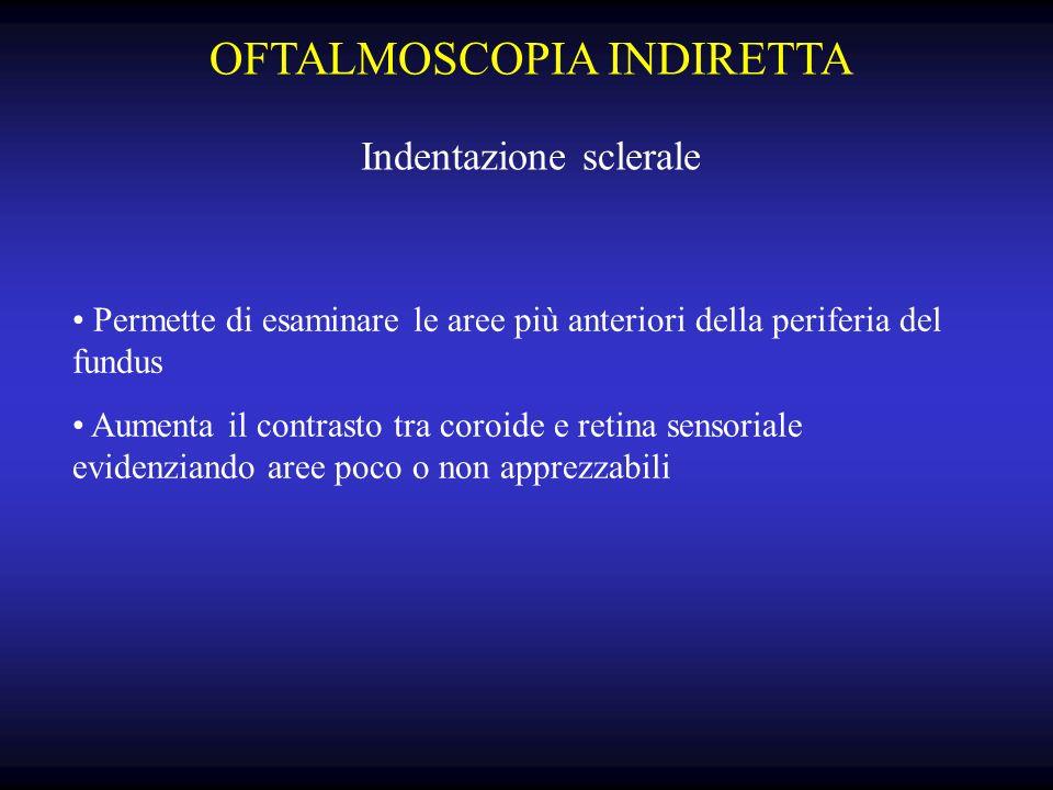 OFTALMOSCOPIA INDIRETTA