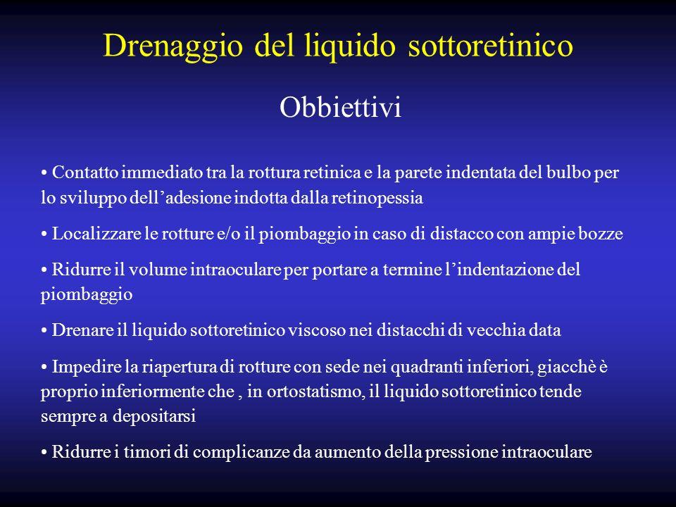 Drenaggio del liquido sottoretinico