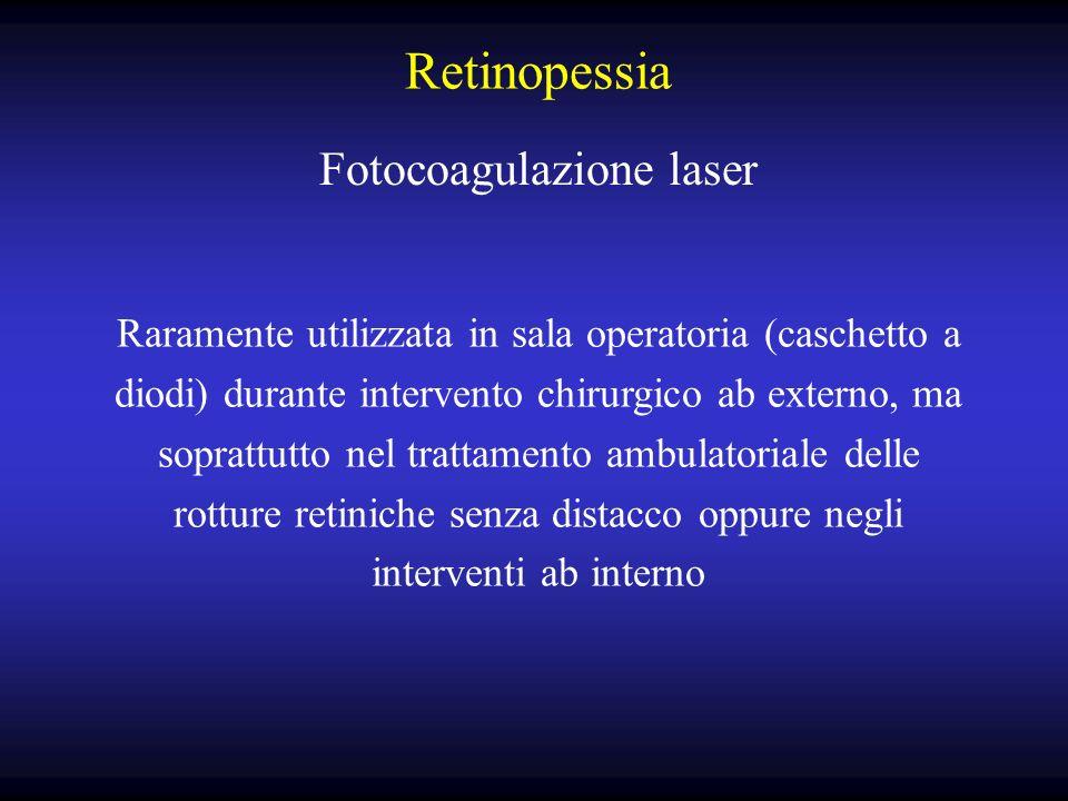 Fotocoagulazione laser