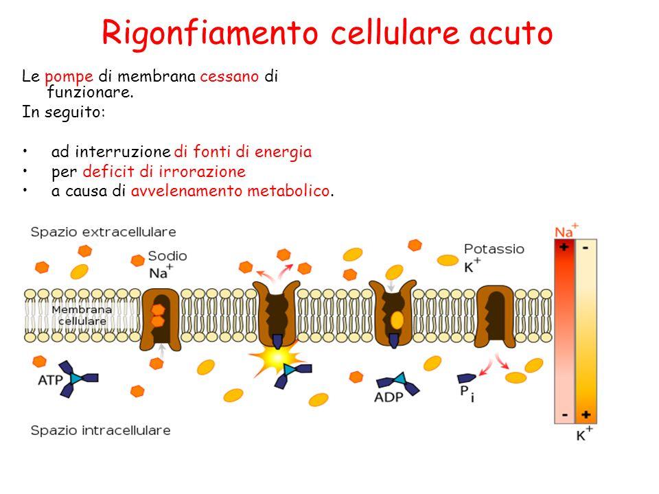 Rigonfiamento cellulare acuto