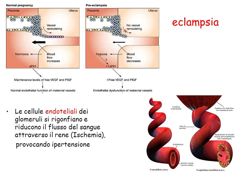 eclampsia Le cellule endoteliali dei glomeruli si rigonfiano e riducono il flusso del sangue attraverso il rene (Ischemia),