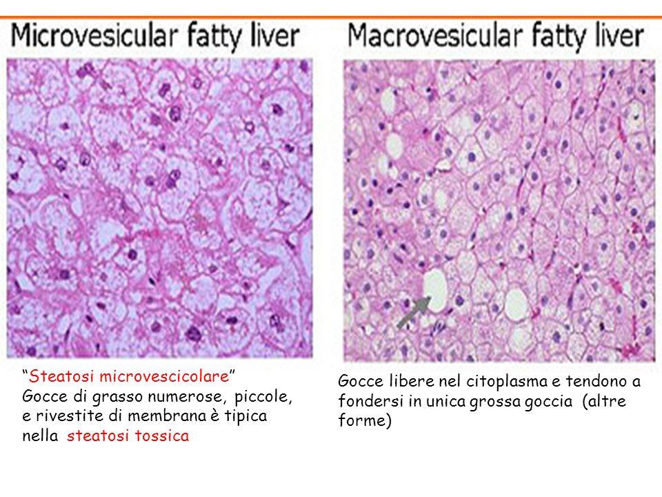 Steatosi microvescicolare