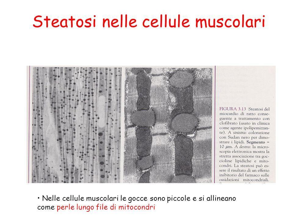 Steatosi nelle cellule muscolari