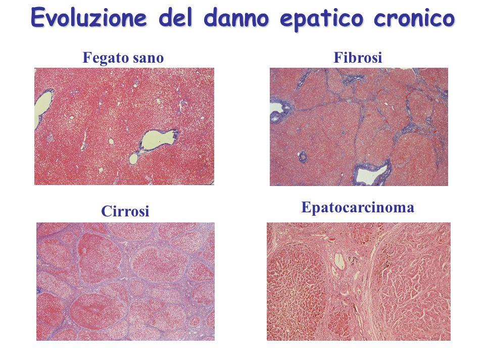 Evoluzione del danno epatico cronico