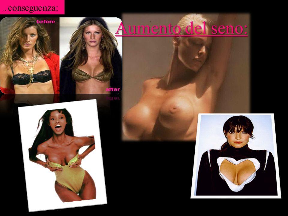.. conseguenza: Aumento del seno: