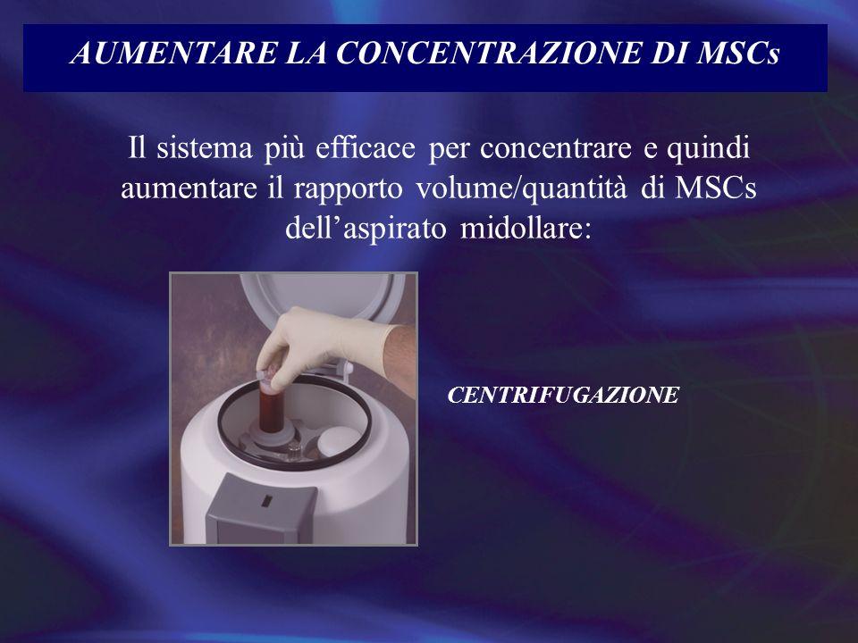 AUMENTARE LA CONCENTRAZIONE DI MSCs