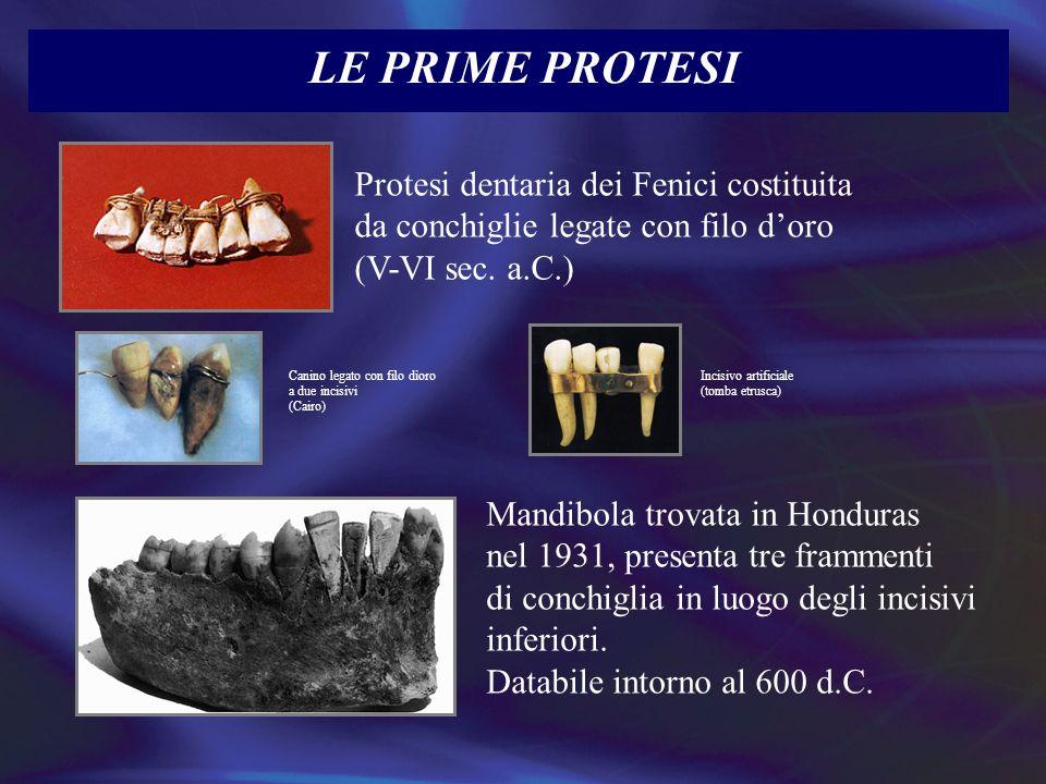 LE PRIME PROTESICanino legato con filo dìoro a due incisivi. (Cairo) Incisivo artificiale. (tomba etrusca)