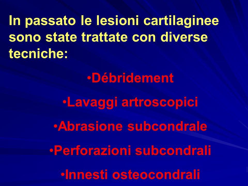 Abrasione subcondrale Perforazioni subcondrali Innesti osteocondrali