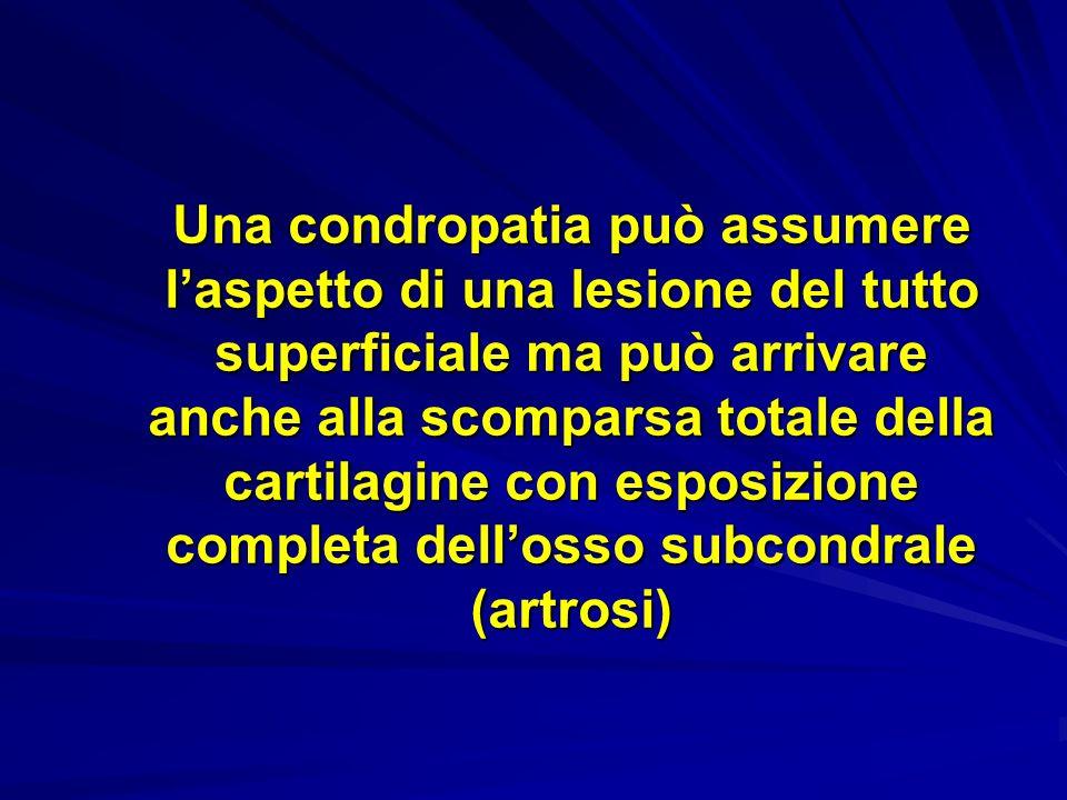 Una condropatia può assumere l'aspetto di una lesione del tutto superficiale ma può arrivare anche alla scomparsa totale della cartilagine con esposizione completa dell'osso subcondrale (artrosi)