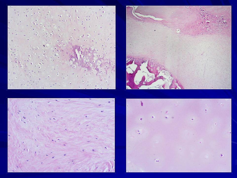 5) A forte ingrandimento: cartilagine neoformata