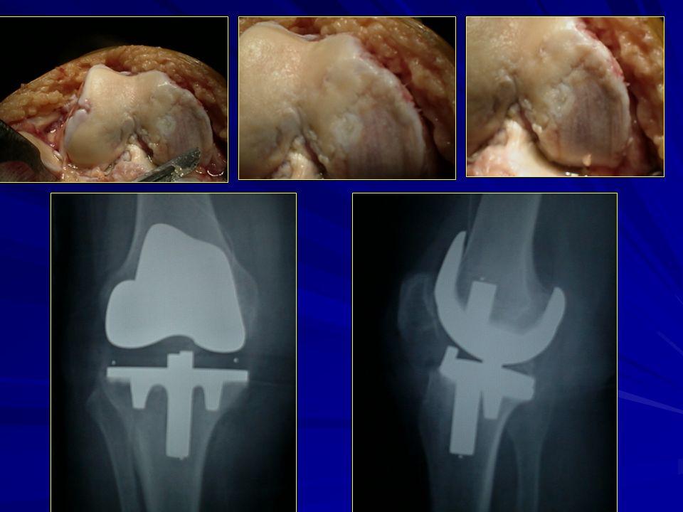 Ambrosino Giuseppina: trap cartilagine e protesi