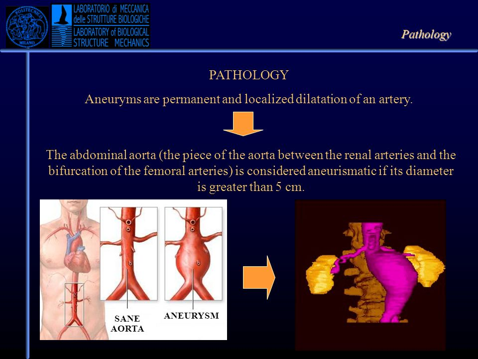 Aneuryms are permanent and localized dilatation of an artery.