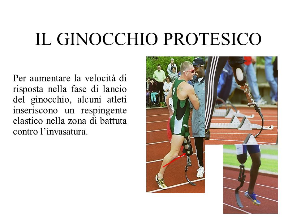 IL GINOCCHIO PROTESICO