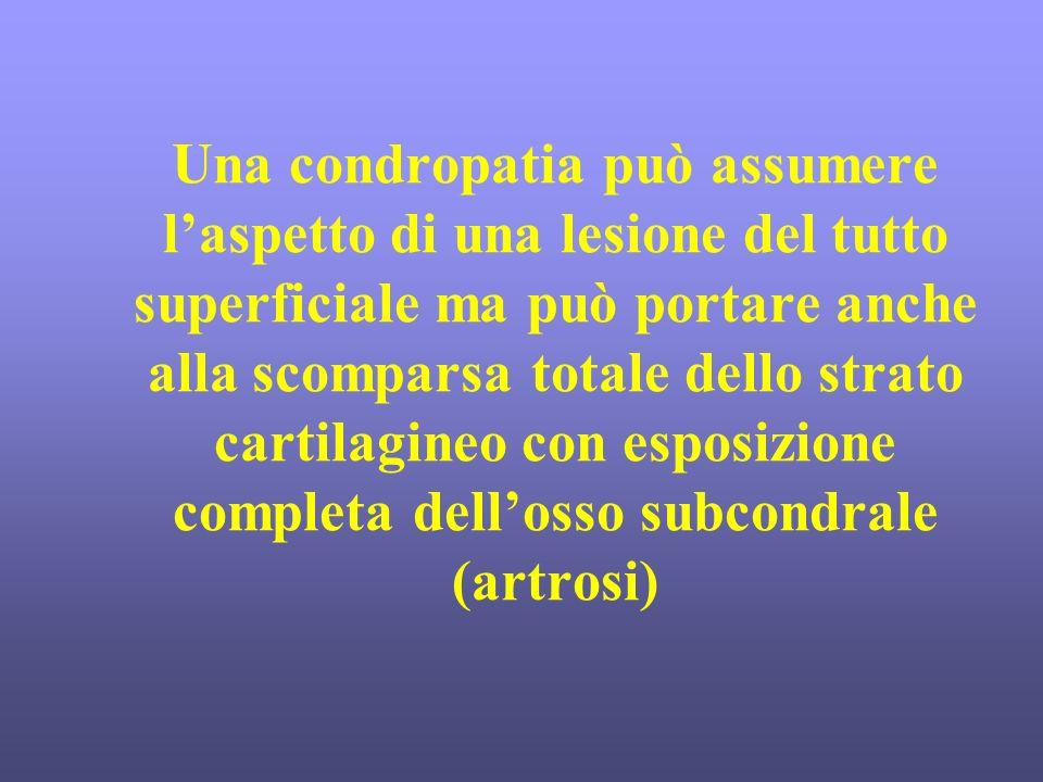 Una condropatia può assumere l'aspetto di una lesione del tutto superficiale ma può portare anche alla scomparsa totale dello strato cartilagineo con esposizione completa dell'osso subcondrale (artrosi)